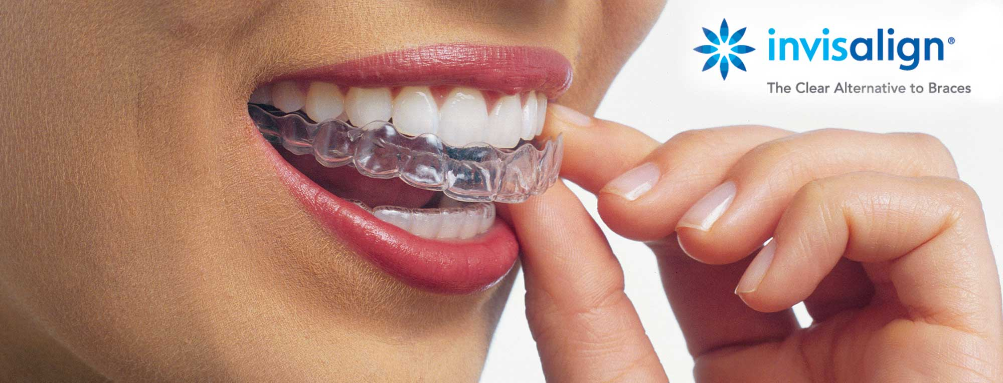 Image result for invisalign