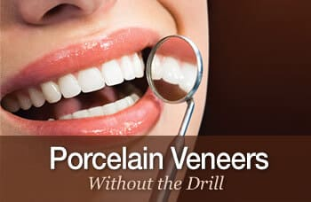 Porcelain Veneers & Dental Crowns in McDonough, GA