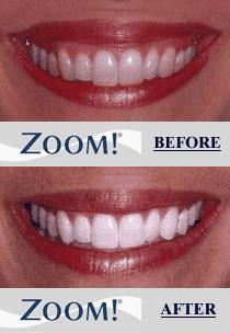 Zoom Teeth Whitening Mcdonough Ga